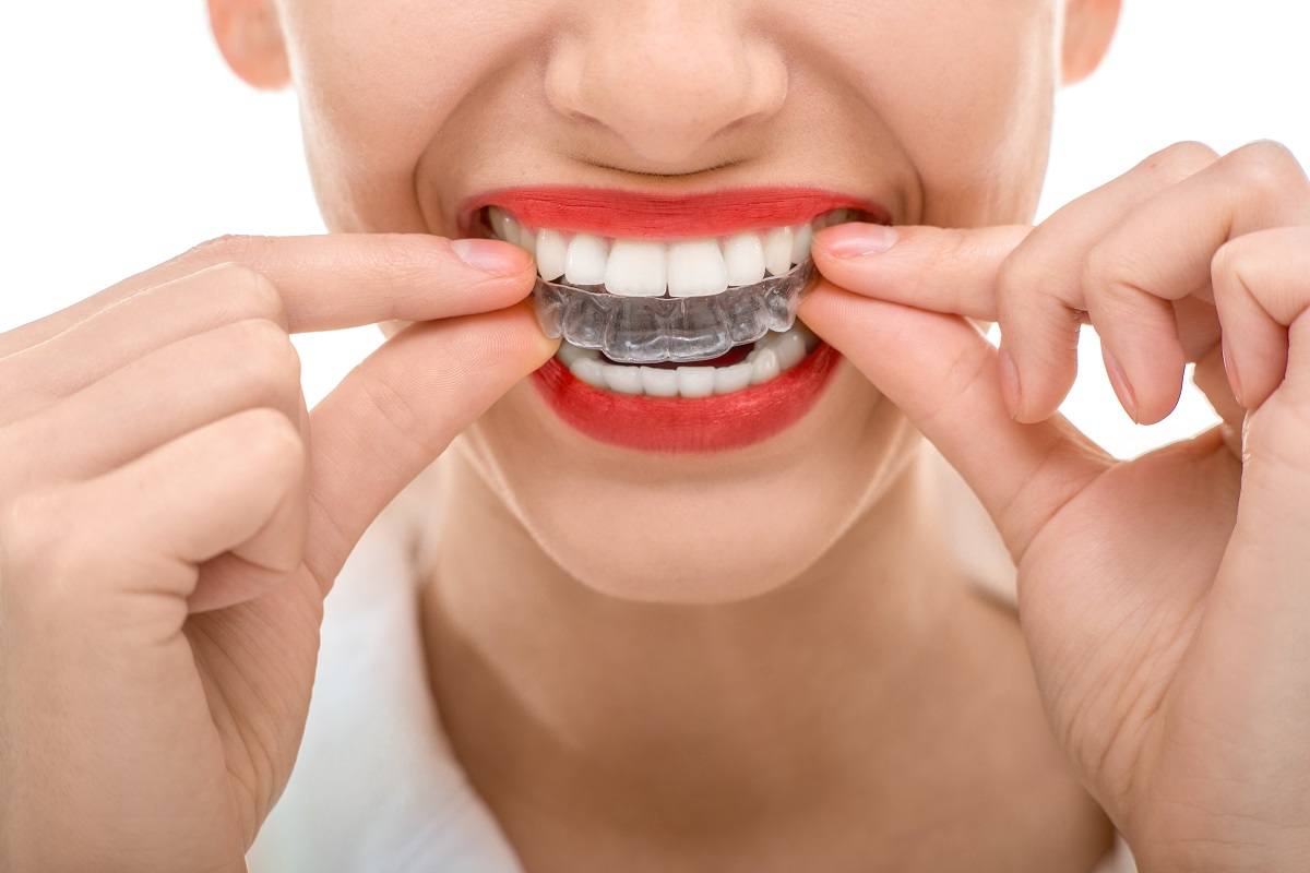 woman wearing ceramic braces