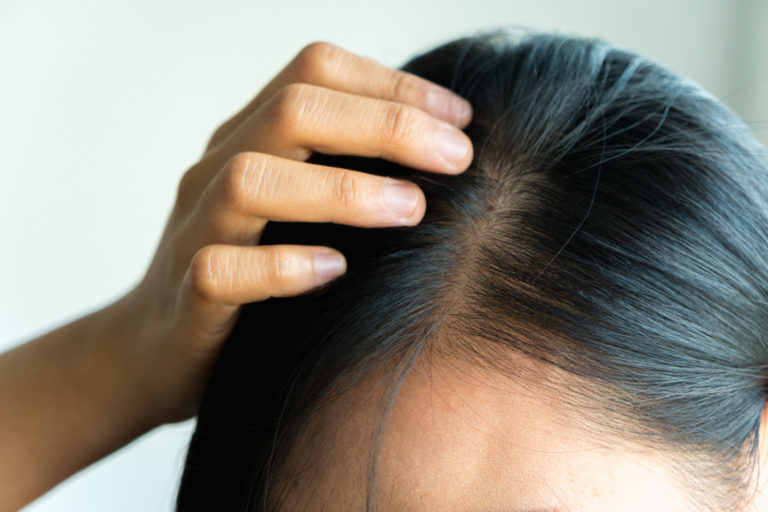 Essential Pointers for Supporting Kids with Alopecia